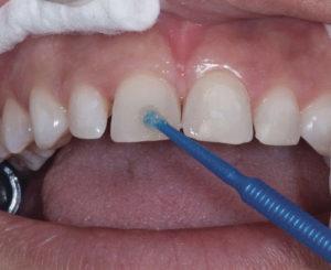 متخصصترمیم و زیبایی دندان، باندینگ