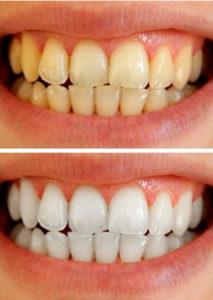 متخصصترمیم و زیبایی دندان، سفید کردن دندان