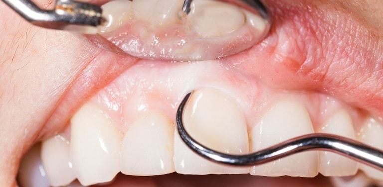 روش های انجام جرم گیری دندان