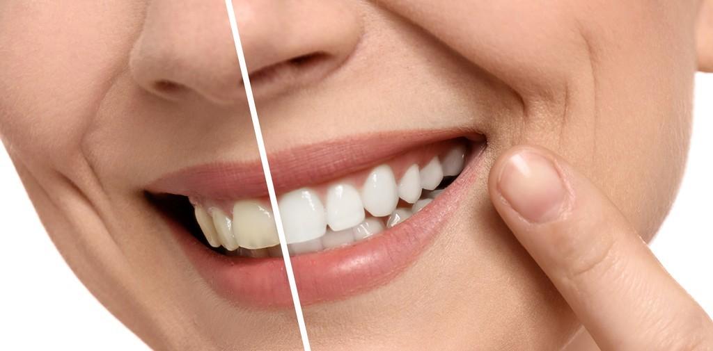 بلیچینگ دندانپزشکی