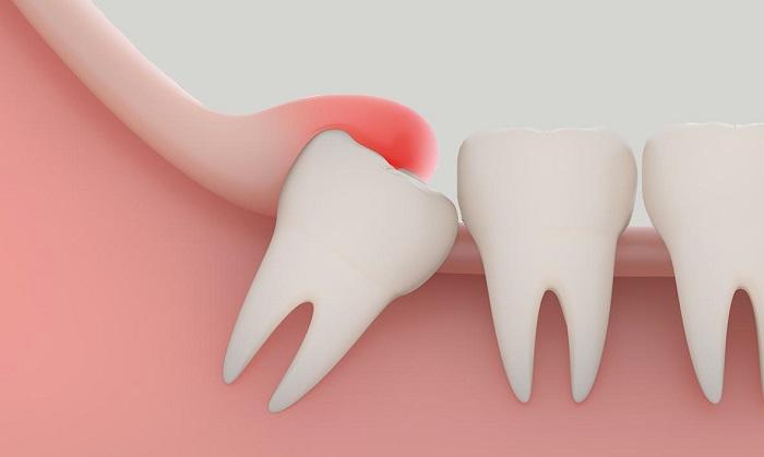 همه آنچه که باید در مورد دندان عقل بدانیم