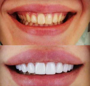 لمینت دندان اقساطی، روکشهای دندان