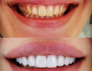 روکشهای دندان