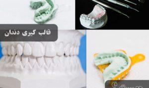 لمینت دندان اقساطی، قالبگیری دندانها