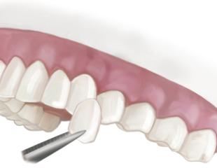 لمینت دندان بدون تراش