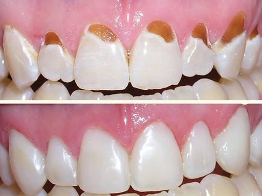 لمینت جدید دندان