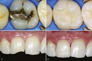 ترمیم دندان با کامپوزیت