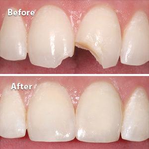 ترمیم دندان چیست
