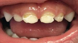 ترمیم دندان پوسیده