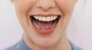 لمینت دندان جلو