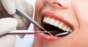 فرق کامپوزیت ونیر و لمینت دندان