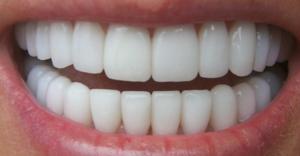 لمینت دندان اقساطی، روکش دندان