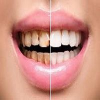 بلیچینگ دندان در کرج چگونه است؟