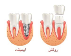 روش های ترمیم و زیبایی دندان