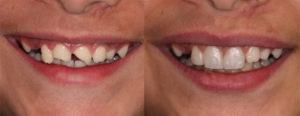 هزینه ترمیم و زیبایی دندان