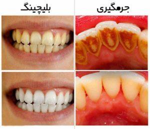 جرم گیری دندانها-2