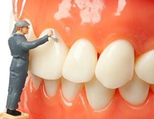 جرم گیری دندانها-1
